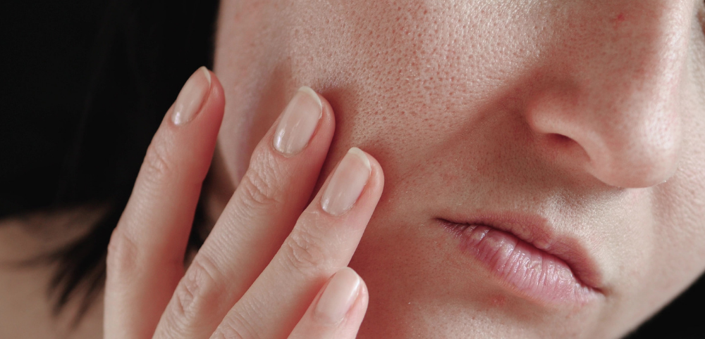woman seeking treatment for enlarged pores