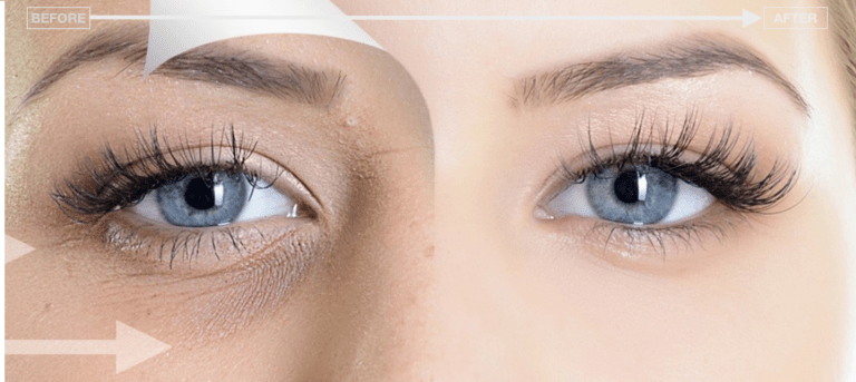 under eye treatment for dark circles london