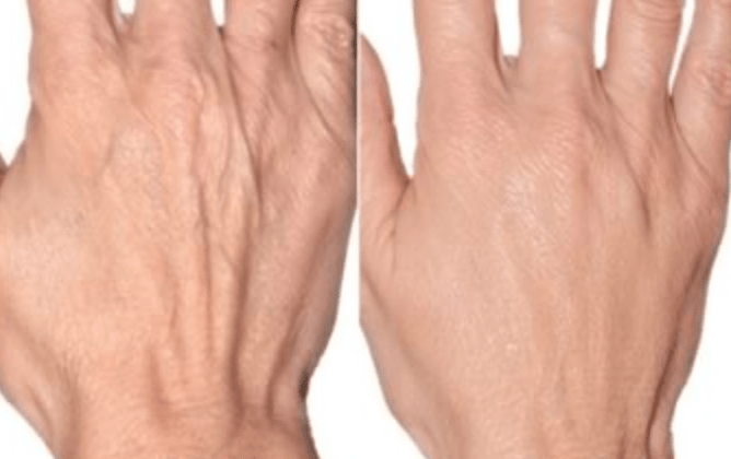 treatment for ageing hands london