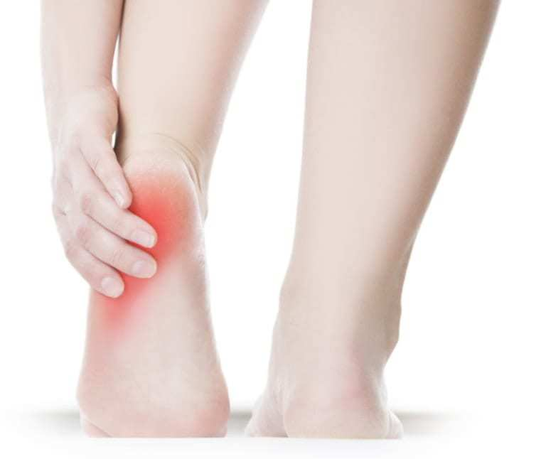 plantar fasciitis london