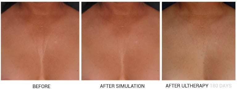 best neck and decolletage treatment london