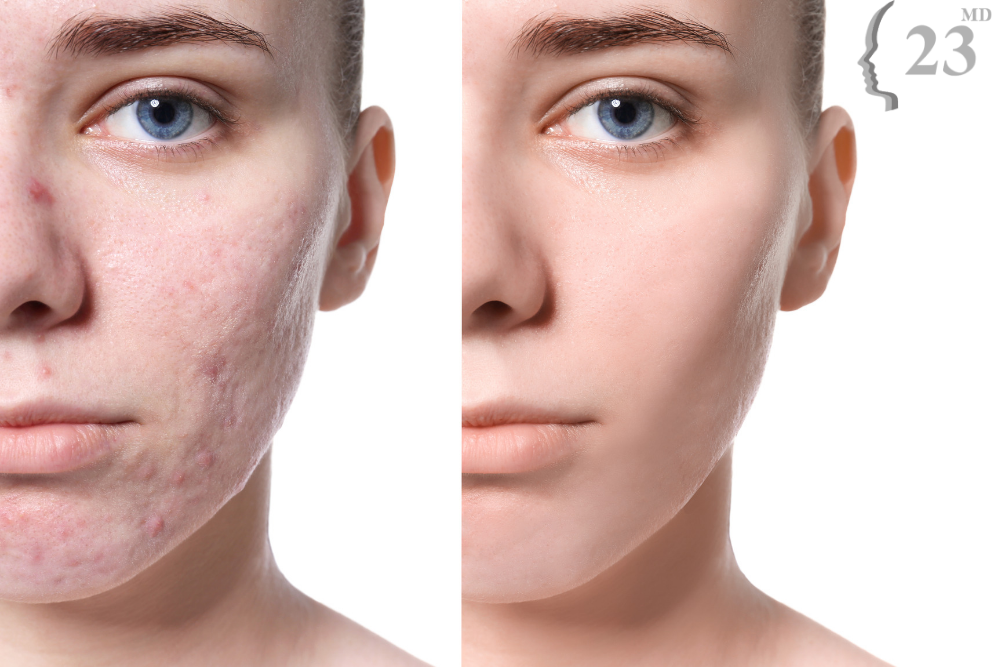 before and after acne scar treatment