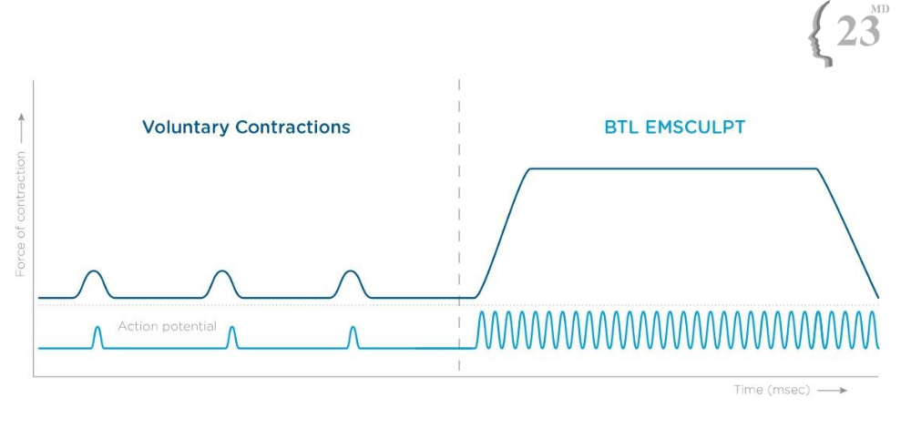Diagram to explain how BTL Emsculpt works